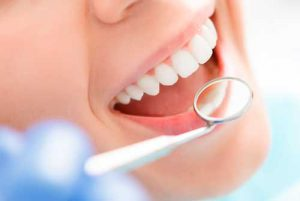 blanqueamiento dental en Asturias